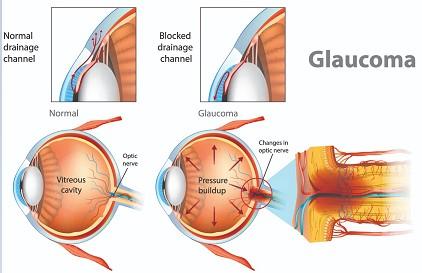 Glaucoma netra